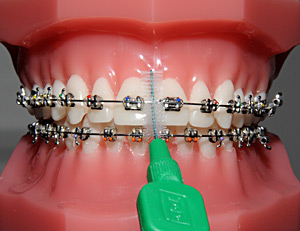 Brosse a dent pour bagues dentaires